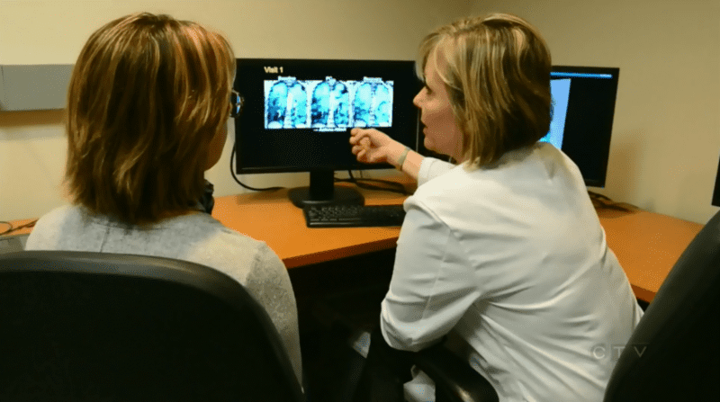 New Scan Could Help Patients With Asthma Finally See Their Illness